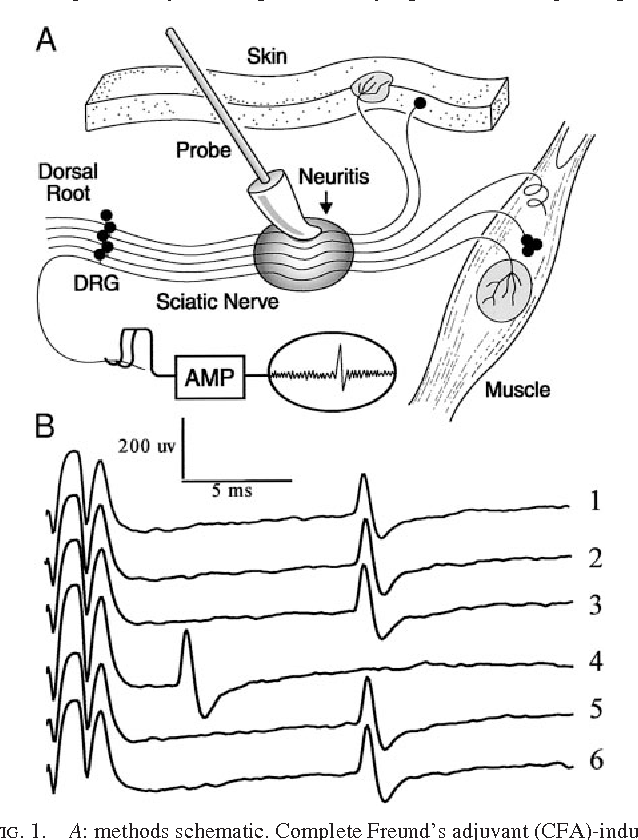 Inflammation Induces Ectopic Mechanical Sensitivity In Axons Of