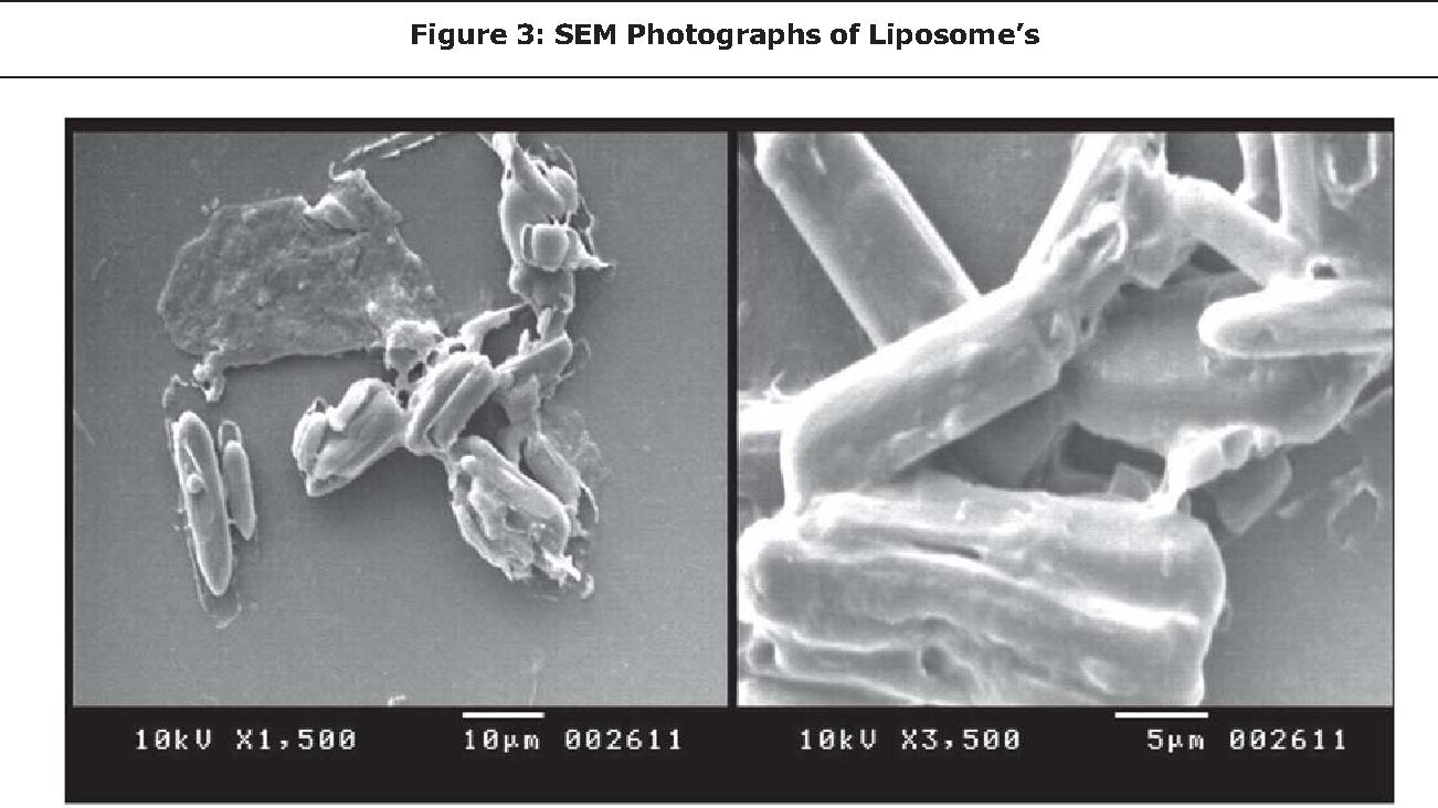 Figure 3: SEM Photographs of Liposome's