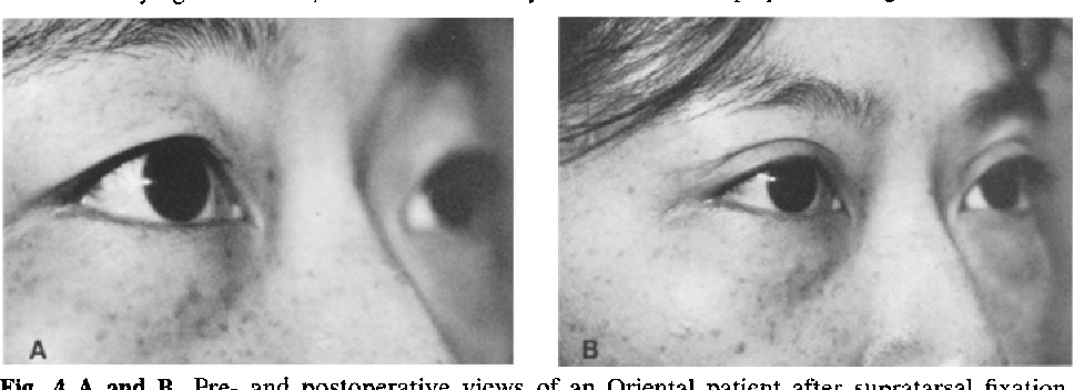 Functional upper eyelid anatomy as applied to aesthetic ...