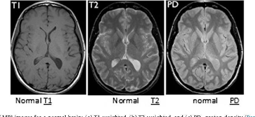 Computer aided diagnosis of human brain tumor through mri a survey figure 1 ccuart Choice Image