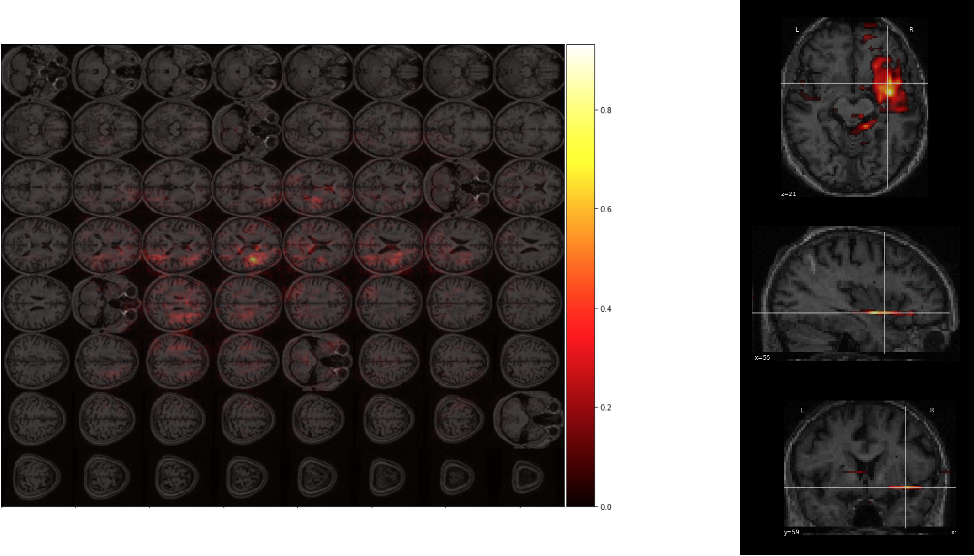 Figure 3 for Predicting Language Recovery after Stroke with Convolutional Networks on Stitched MRI