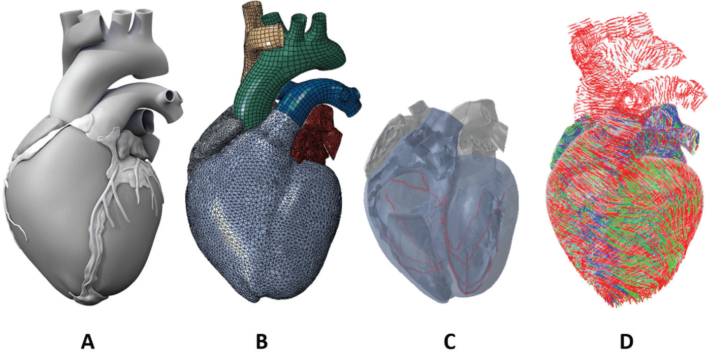 Figure 1 from Partial LVAD restores ventricular outputs and