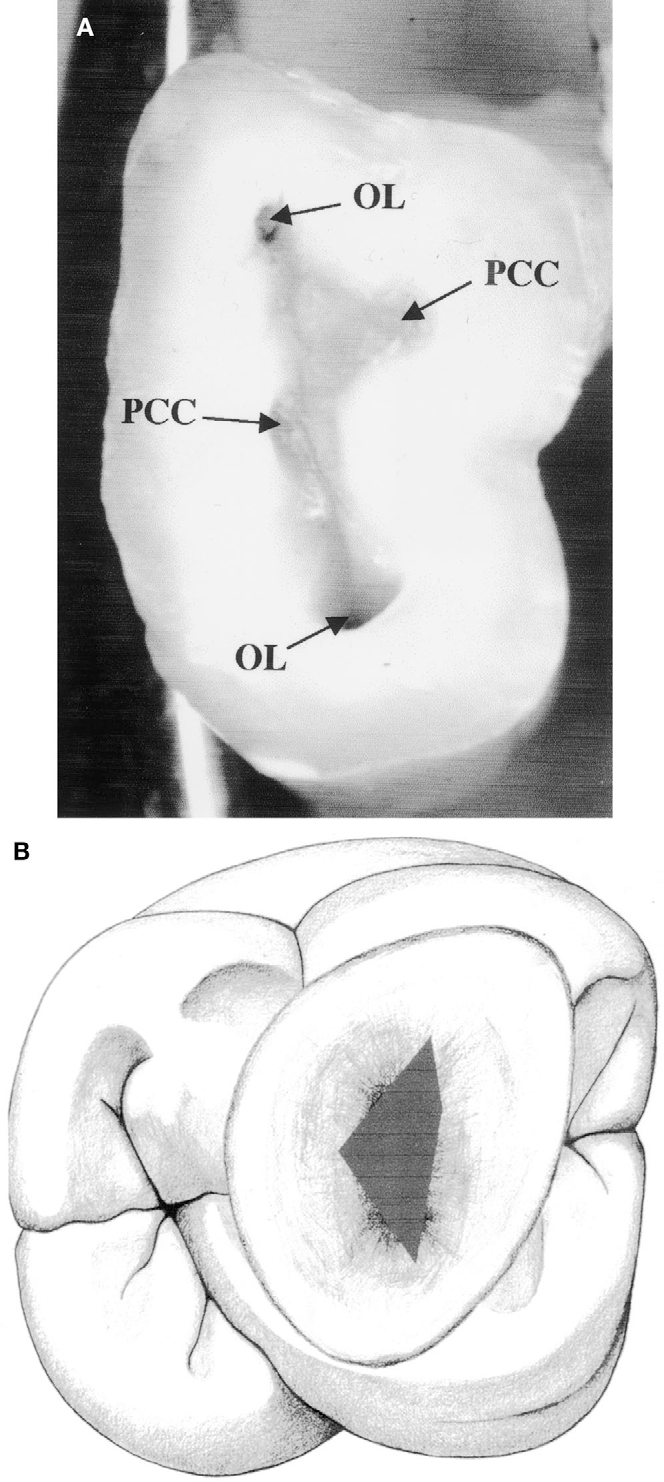 Figure 16 from Anatomy of the pulp-chamber floor. - Semantic Scholar