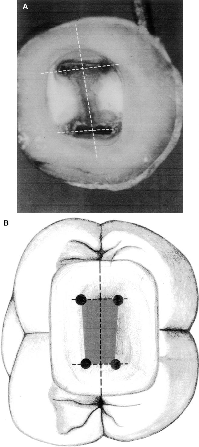 Figure 10 from Anatomy of the pulp-chamber floor. - Semantic Scholar
