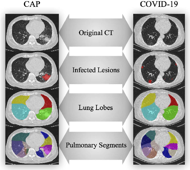 Figure 1 for Hypergraph Learning for Identification of COVID-19 with CT Imaging