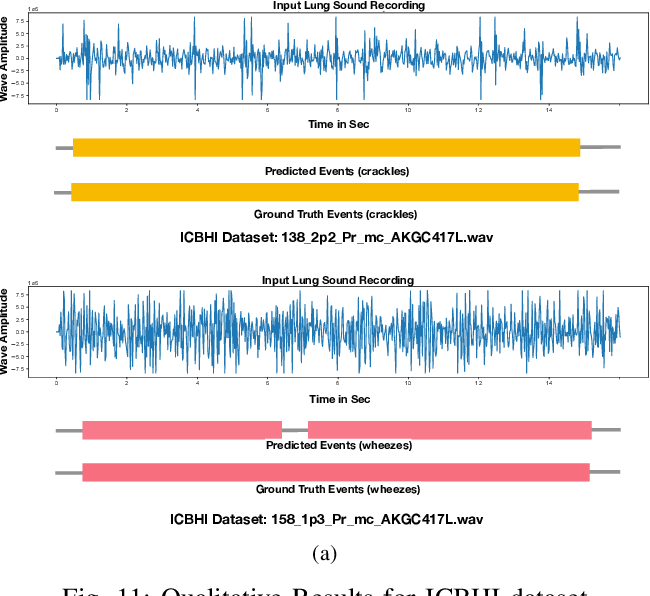 Figure 3 for Robust and Interpretable Temporal Convolution Network for Event Detection in Lung Sound Recordings