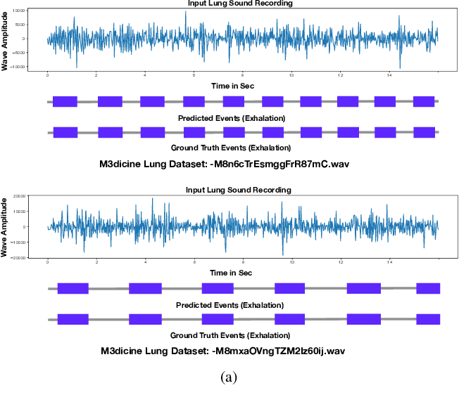 Figure 4 for Robust and Interpretable Temporal Convolution Network for Event Detection in Lung Sound Recordings