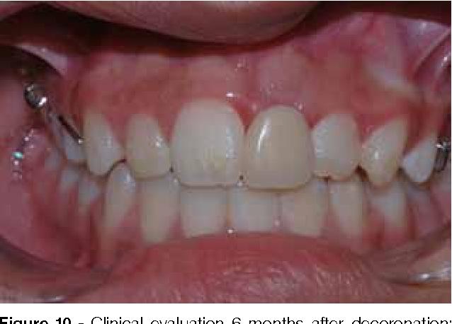 Figure 10 from Decoronation as an alternative procedure for