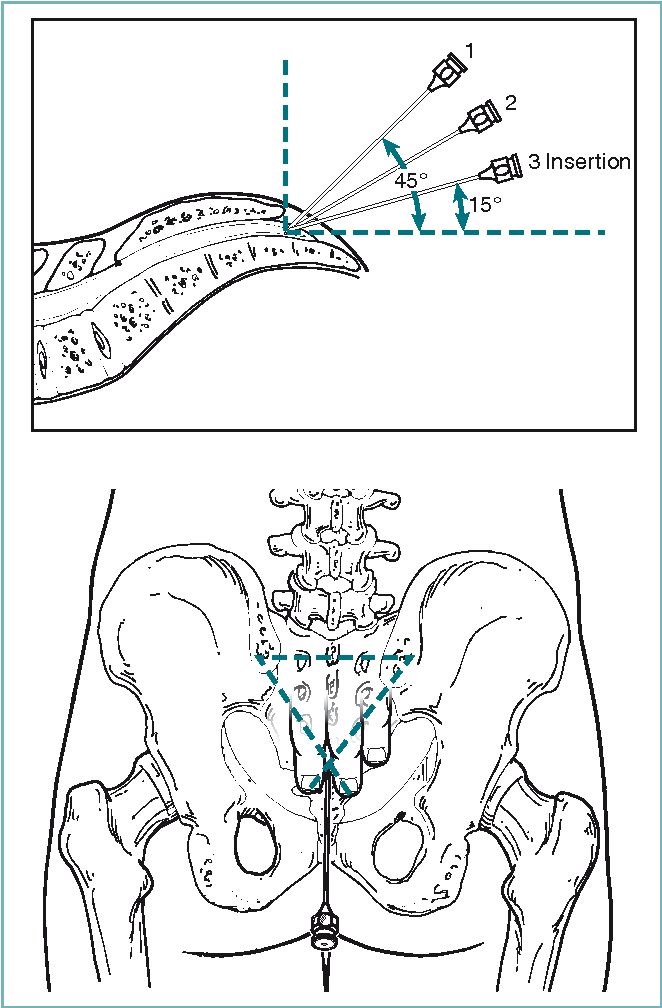 Figure 12-18 from Chapter 12 Spinal , Epidural , and Caudal ...