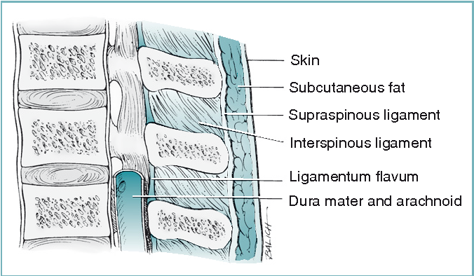 Figure 12-7 from Chapter 12 Spinal , Epidural , and Caudal ...