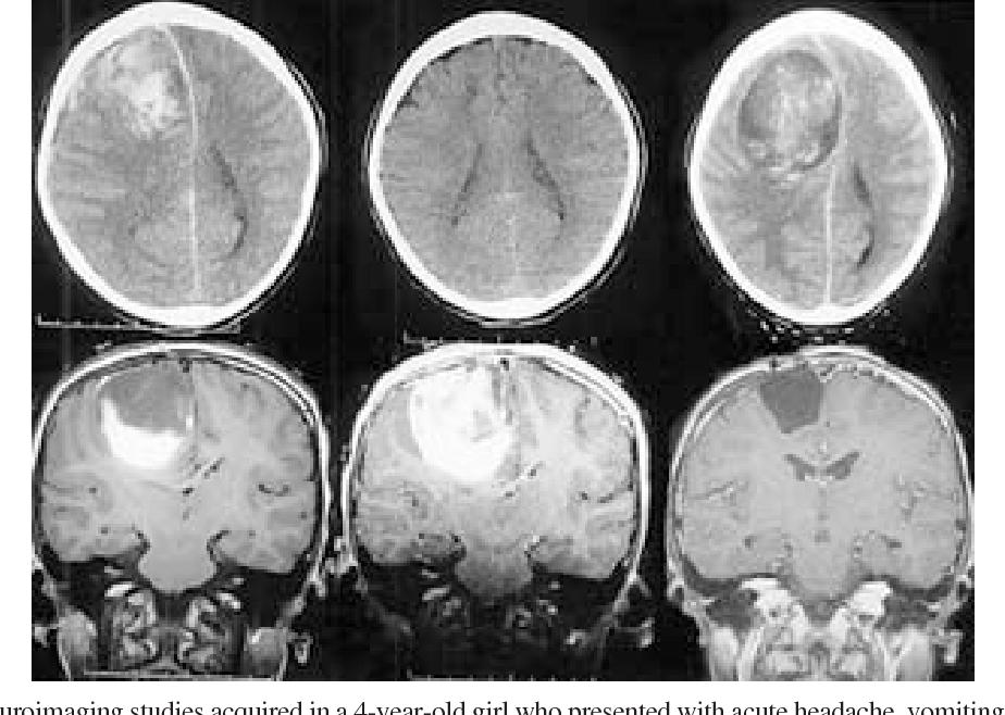 Figure 3 from Spontaneous intracerebral hemorrhage: a review