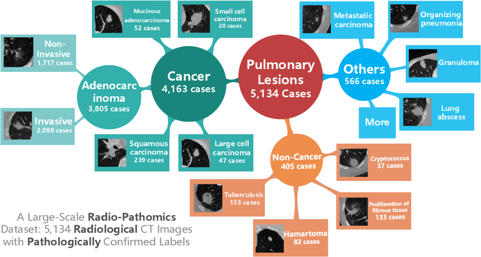 Figure 1 for Hierarchical Classification of Pulmonary Lesions: A Large-Scale Radio-Pathomics Study