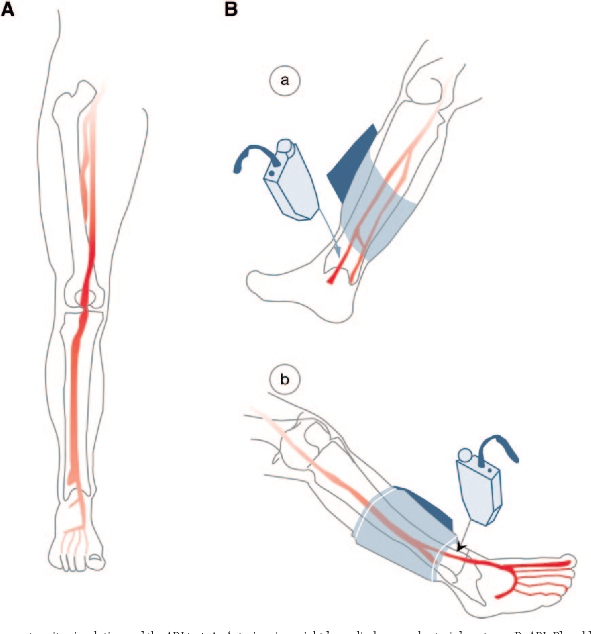 Figure 3 from Comprehensive Foot Examination and Risk Assessment ...