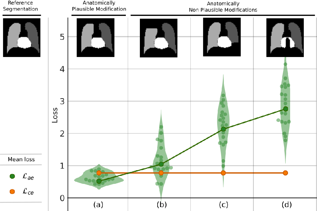 Figure 3 for Learning Deformable Registration of Medical Images with Anatomical Constraints