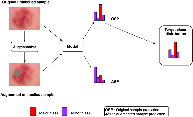 Figure 2 for Semi-supervised learning for medical image classification using imbalanced training data