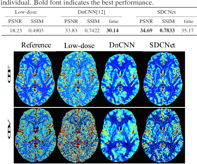 Figure 2 for SDCNet: Smoothed Dense-Convolution Network for Restoring Low-Dose Cerebral CT Perfusion