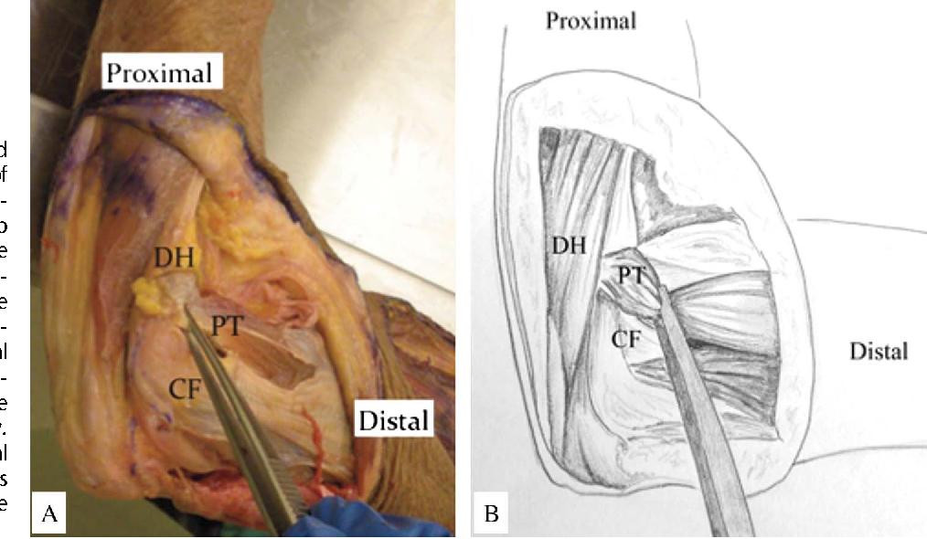 Medial Elbow Exposure For Coronoid Fractures Fcu Split Versus Over