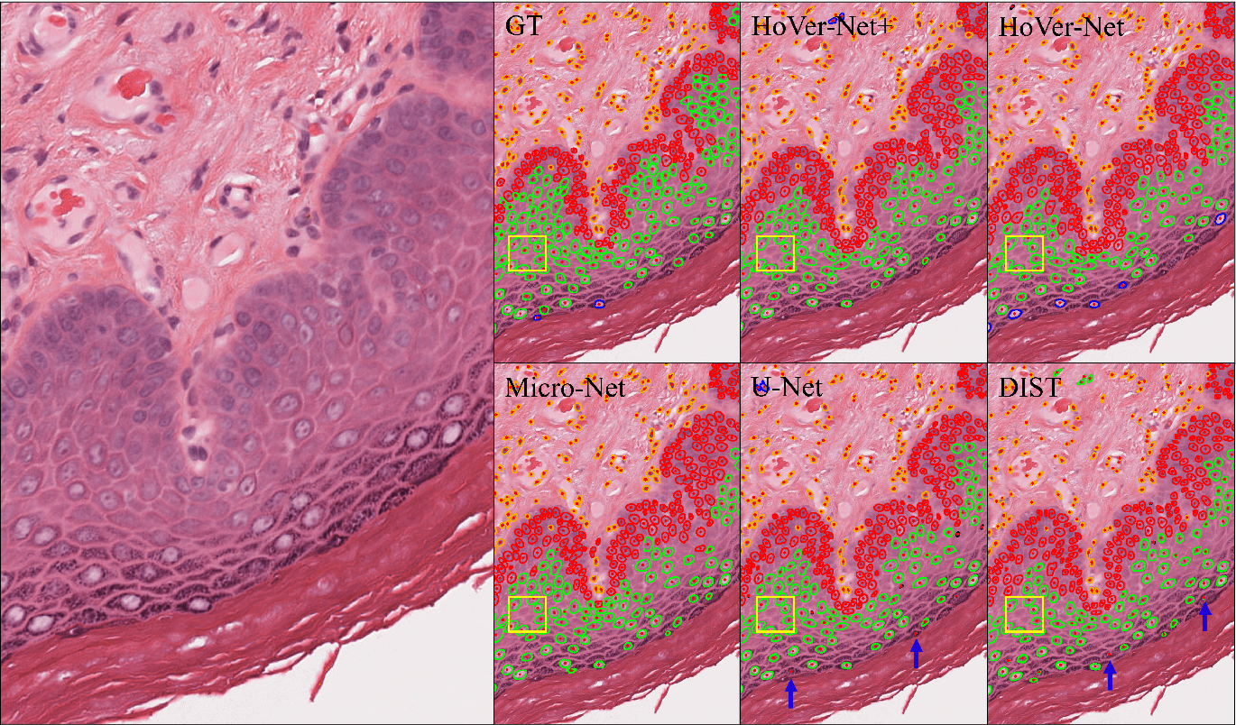 Figure 4 for Simultaneous Nuclear Instance and Layer Segmentation in Oral Epithelial Dysplasia