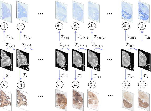 Figure 1 for Robust joint registration of multiple stains and MRI for multimodal 3D histology reconstruction: Application to the Allen human brain atlas