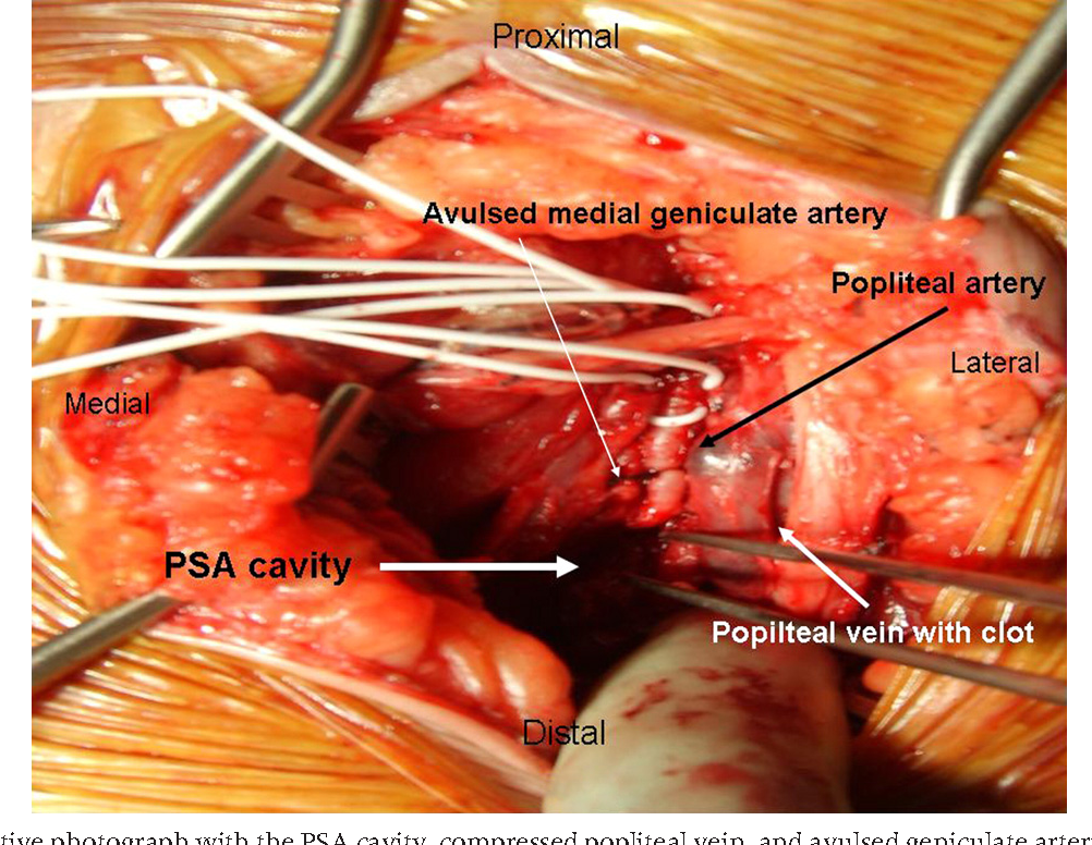 Superior medial geniculate artery pseudoaneurysm after primary total ...