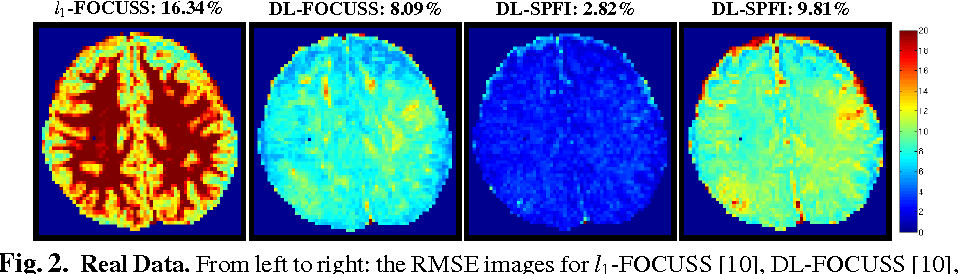 Figure 2 for Regularized Spherical Polar Fourier Diffusion MRI with Optimal Dictionary Learning