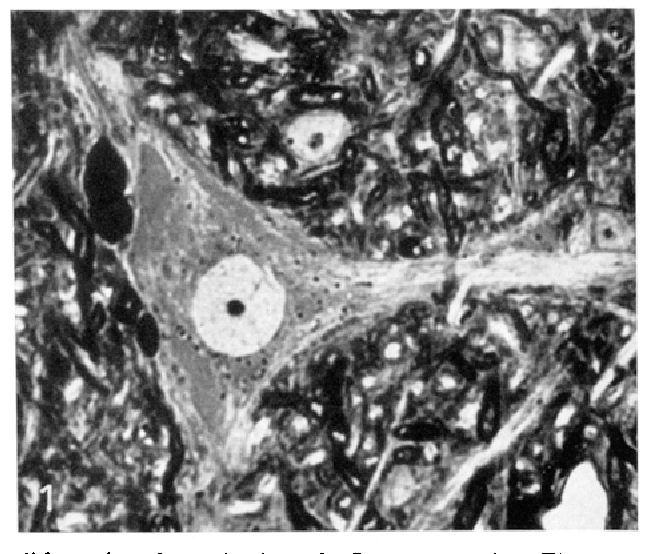 Electron microscopic studies on pigment granules in the substantia ...