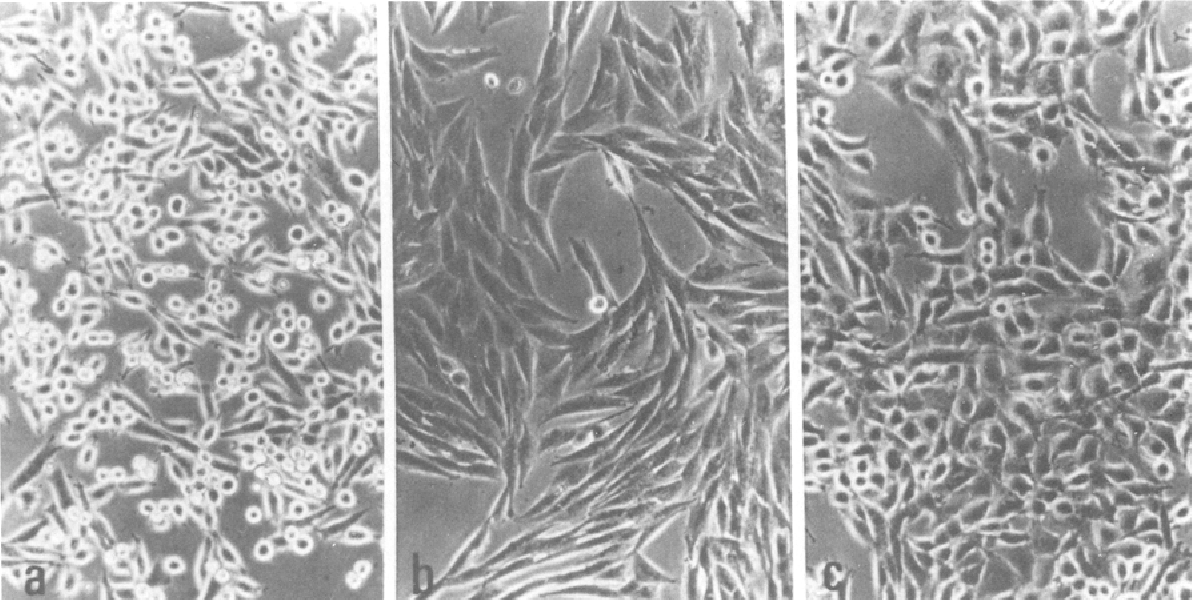 Fig. I. Morphological changes of P-29 cells treated with DMSO and butyric acid: (a) untreated cells, (b) cells treated with 280mM DMSO for 5 days, and (c) cells treated with 1 mM butyric acid for 5 days.