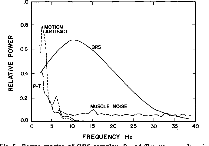power spectra of qrs complex, p- and t-waves
