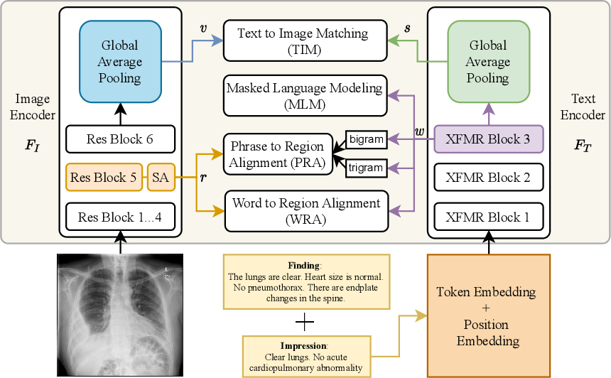 Figure 1 for Improving Joint Learning of Chest X-Ray and Radiology Report by Word Region Alignment