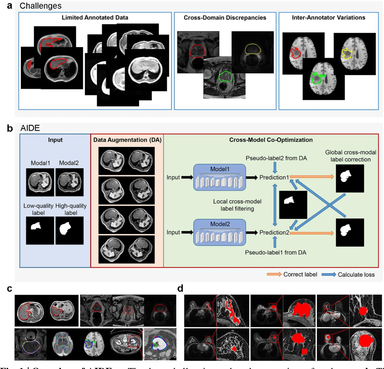 Figure 1 for AIDE: Annotation-efficient deep learning for automatic medical image segmentation