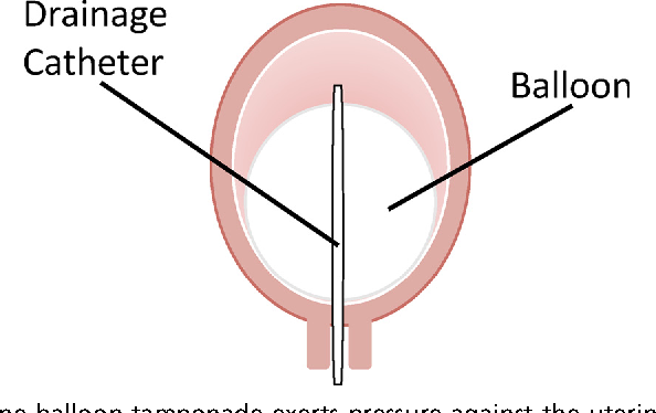 Fig. 4. Intrauterine balloon tamponade exerts pressure against the uterine wall to reduce venous bleeding from the endometrium and myometrium. A central drainage catheter helps quantitate ongoing uterine bleeding.