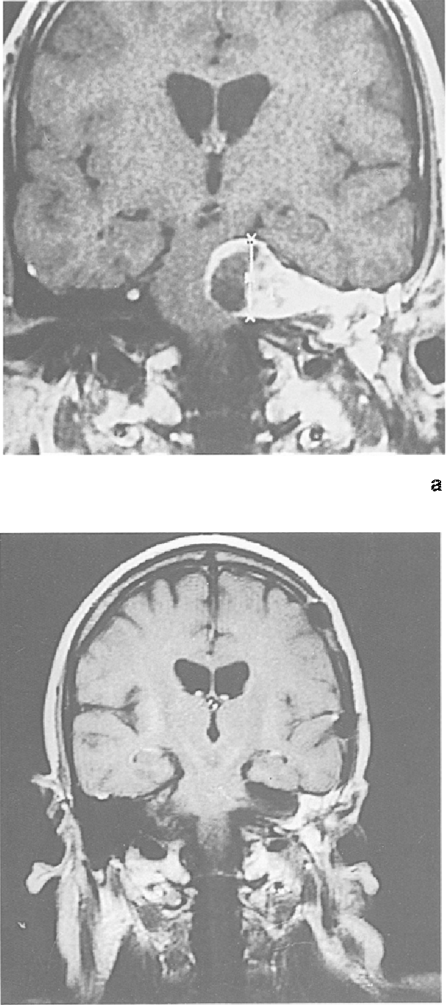 Frontotemporal epidural approach to trigeminal neurinomas - Semantic ...