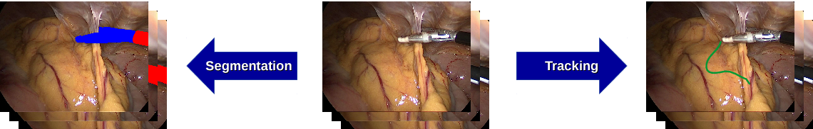 Figure 1 for Comparative evaluation of instrument segmentation and tracking methods in minimally invasive surgery