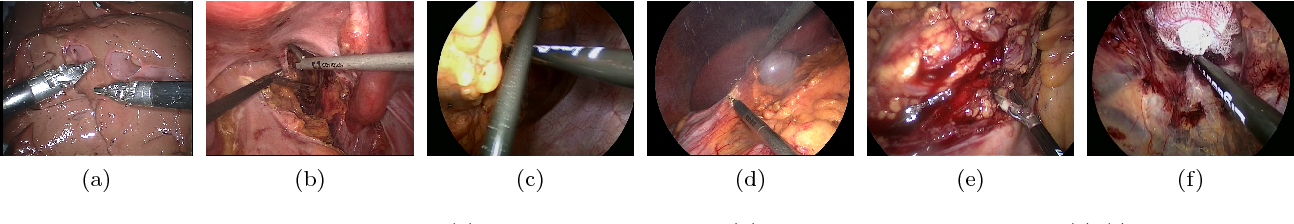 Figure 3 for Comparative evaluation of instrument segmentation and tracking methods in minimally invasive surgery
