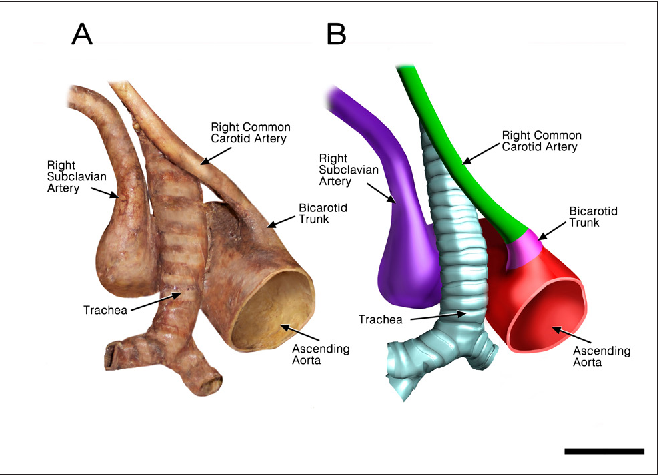 Figure 5 From Computer Model Of An Aberrant Right Subclavian Artery