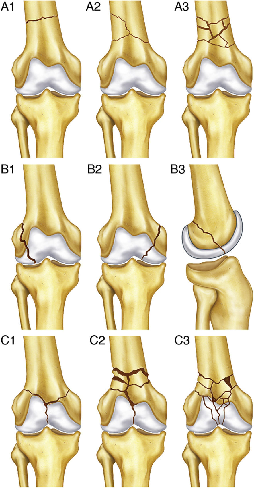 Management of Distal Femur Fractures in Adults: An Overview of ...