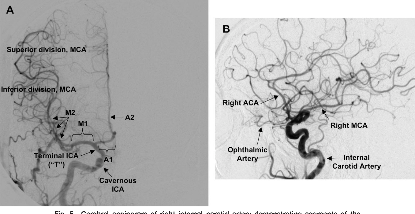 Figure 5 from Clinical cerebrovascular anatomy. - Semantic Scholar