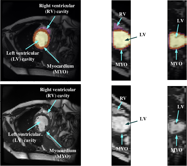 Figure 1 for Myocardial Segmentation of Cardiac MRI Sequences with Temporal Consistency for Coronary Artery Disease Diagnosis
