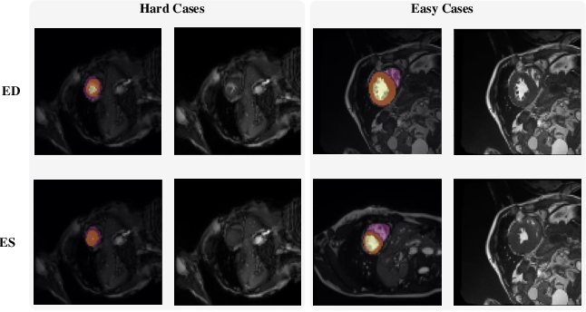 Figure 2 for Myocardial Segmentation of Cardiac MRI Sequences with Temporal Consistency for Coronary Artery Disease Diagnosis