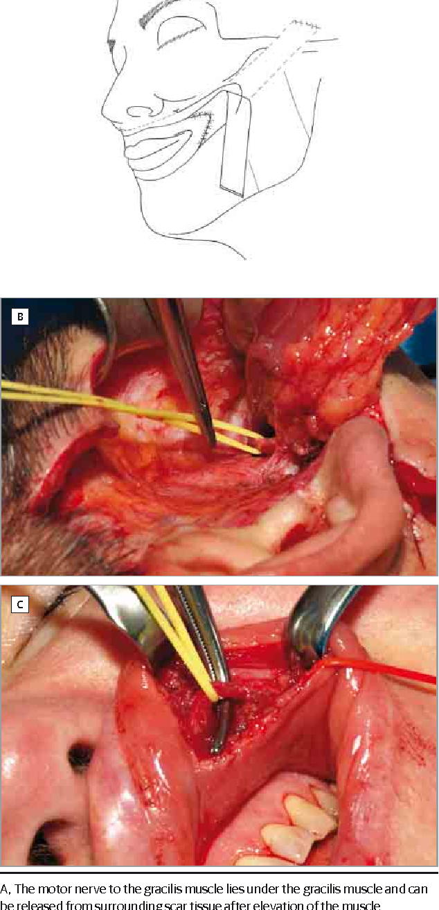 Figure 2. Intraoperative Views of Patient 3 in the Table
