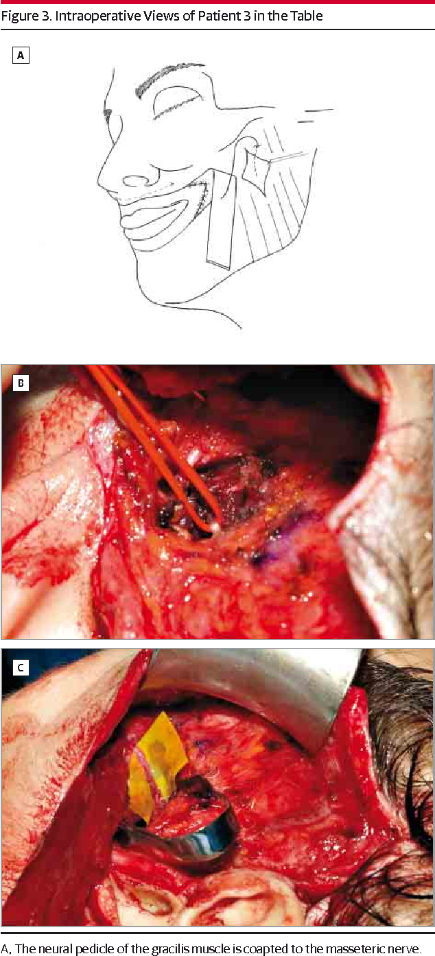 Figure 3. Intraoperative Views of Patient 3 in the Table