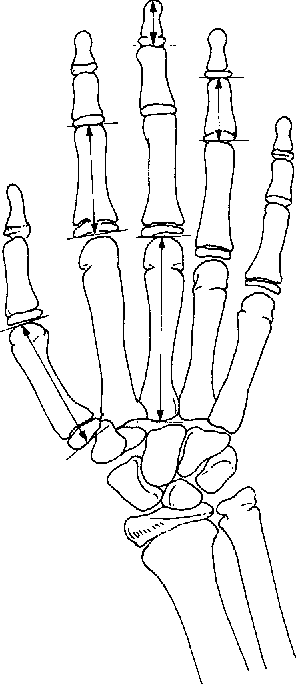 Figure 1 From Normal Values For Metacarpal And Phalangeal Lengths In