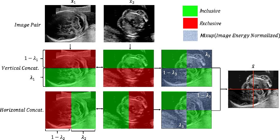Figure 3 for Principled Ultrasound Data Augmentation for Classification of Standard Planes