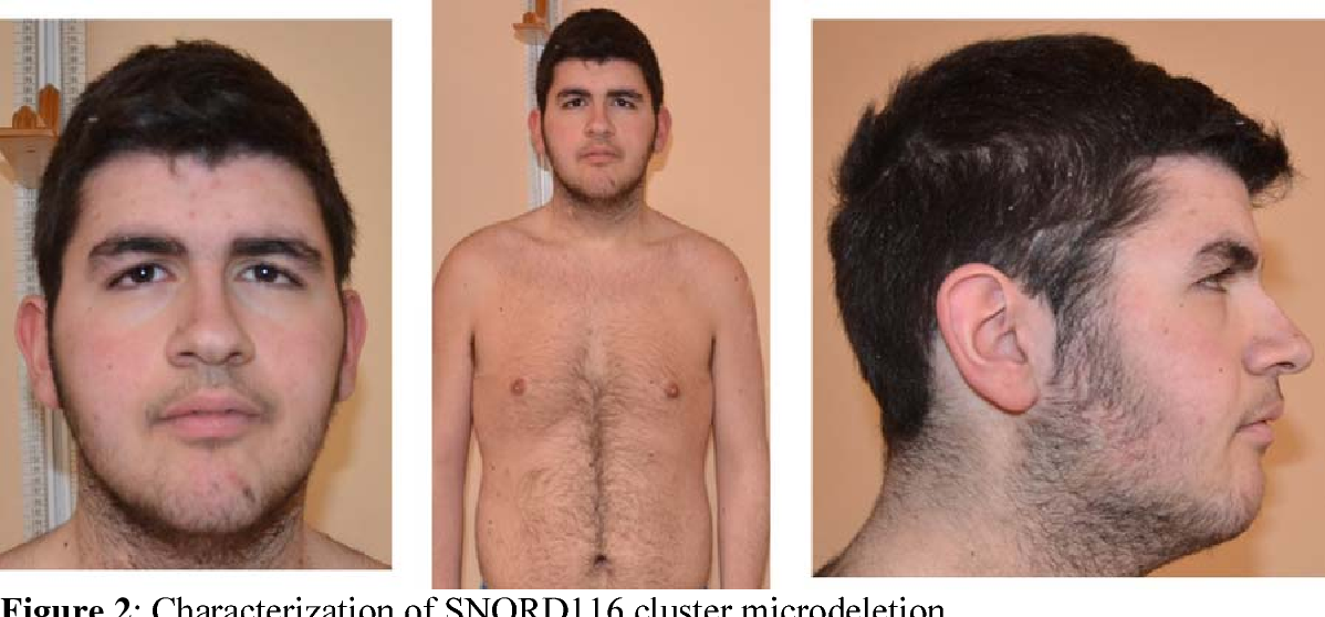 snord116 deletions cause prader willi syndrome with a mild phenotype