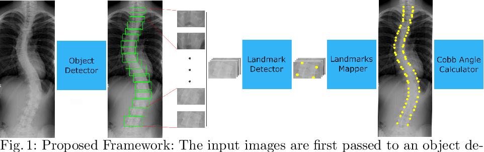 Figure 1 for Automatic Cobb Angle Detection using Vertebra Detector and Vertebra Corners Regression