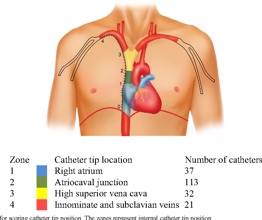 Distance of the internal central venous catheter tip from the right ...