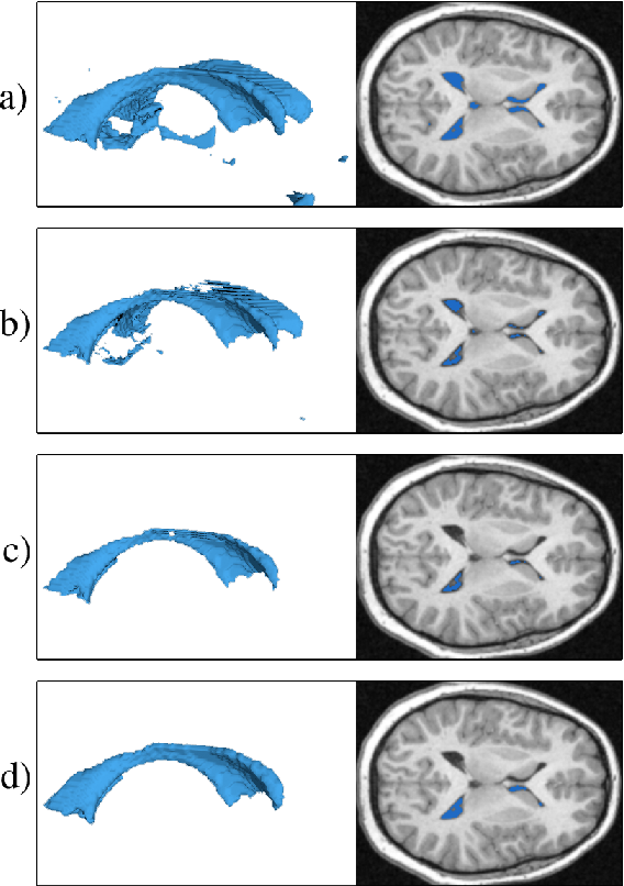 Figure 2 for A Fast, Semi-Automatic Brain Structure Segmentation Algorithm for Magnetic Resonance Imaging