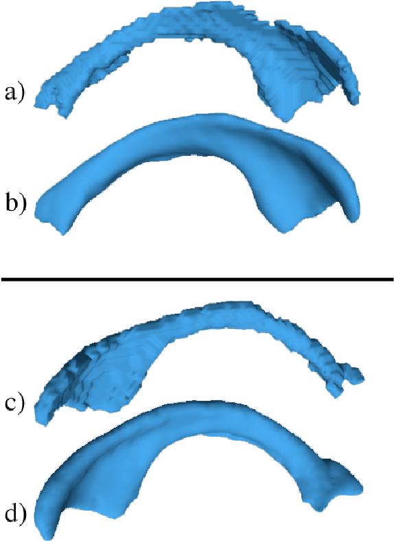 Figure 3 for A Fast, Semi-Automatic Brain Structure Segmentation Algorithm for Magnetic Resonance Imaging