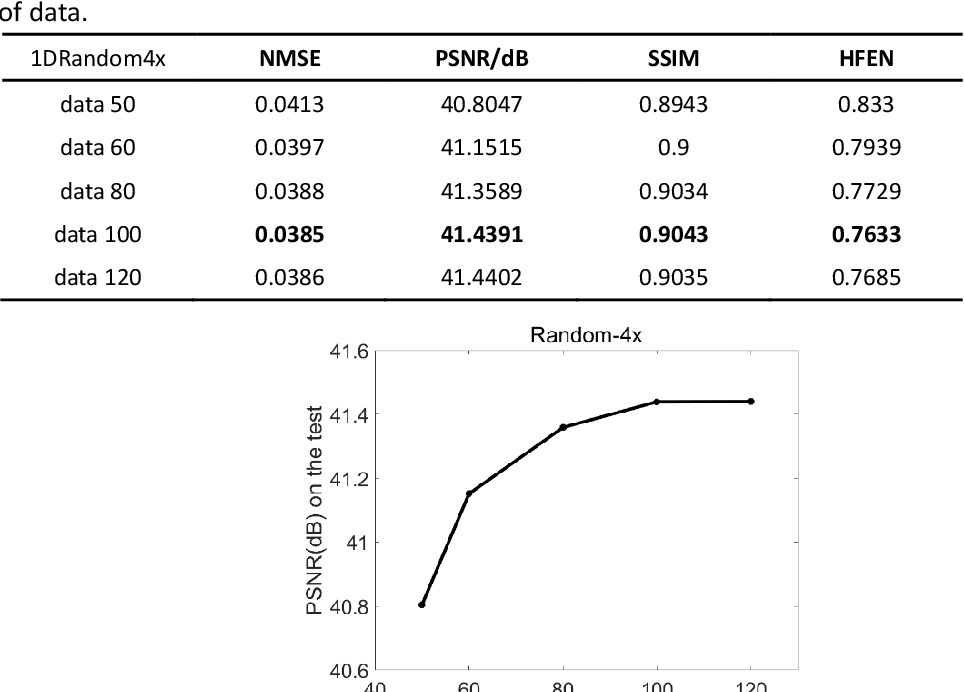 Figure 4 for LANTERN: learn analysis transform network for dynamic magnetic resonance imaging with small dataset