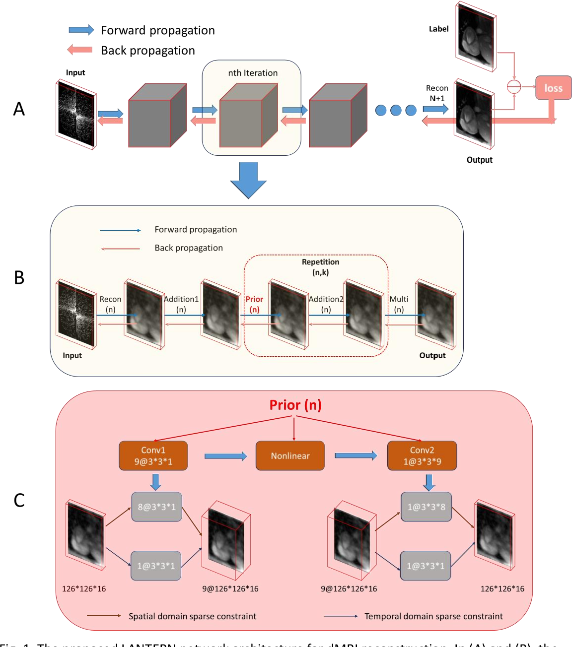 Figure 1 for LANTERN: learn analysis transform network for dynamic magnetic resonance imaging with small dataset